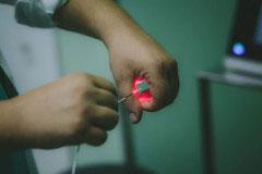 Νέα ενδοσκοπική θεραπεία με LASER δίνει τέλος στην κύστη κόκκυγος.